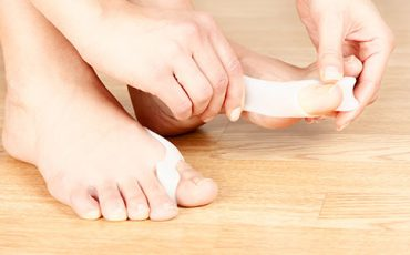 Gaining The Outcome Of Singapore Bunion Surgery